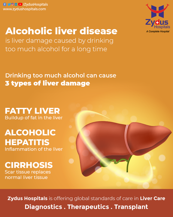 Alcohol damages the liver and prevents it from functioning well. Alcoholic liver disease is defined by three stages of liver damage following chronic heavy alcohol consumption, namely fatty liver, alcoholic hepatitis, and fibrosis/cirrhosis. The complications caused by these diseases can increase the risk of developing liver cancer & therefore it is important to take good care of your liver and consult a doctor in case of symptoms.   #Hepatitis #Cirrhosis #Liver #LiverDiseases #LiverCancer #Diabetes #LiverDamage #NoAlcohol #Exercise #EatHealthy #HealthyDiet #ZydusHospitals #HealthCare #StayHealthy #ZydusCare #Ahmedabad #Gujarat #BestHospitalinAhmedabad