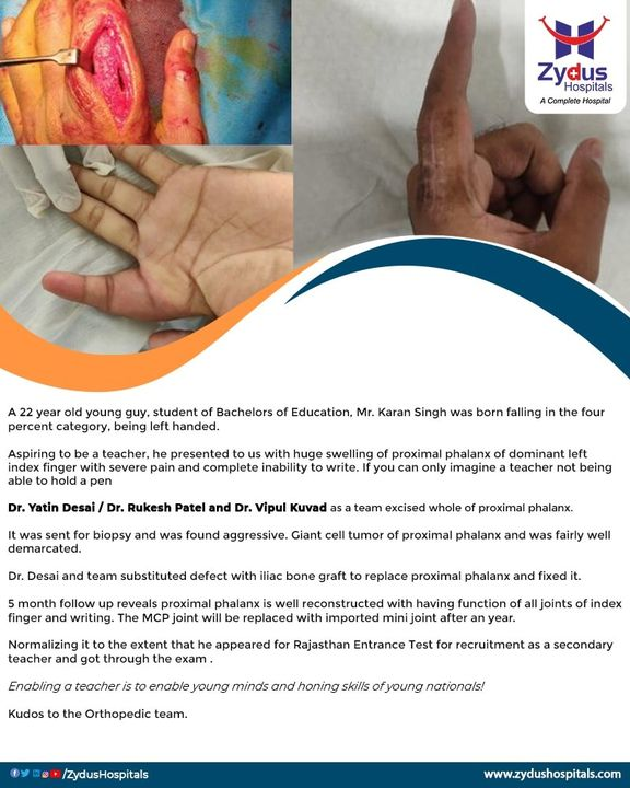 Here's an astonishing story of a left handed teacher who can now write a better future of many.   Zydus Hospitals witnessed the case of Mr. Karan Singh who had a huge swelling in his left index finger. But we can proudly say that  Aggressive giant cell tumor with erosion of cortex of proximal phalanx - done & dusted by Team Ortho with their commendable skills & experience. After 5 months, the proximal phalanx of Mr. Karan Singh is now well reconstructed while it performs all the functions of an index finger, especially writing.   #ClientDiaries #CellTumour #Tumour #Ortho #Orthopedic #IndexFinger #Teacher #Phalanx #Hospital #Health #ZydusHospitals #HealthCare #StayHealthy #ZydusCare #Ahmedabad #Gujarat #BestHospitalinAhmedabad