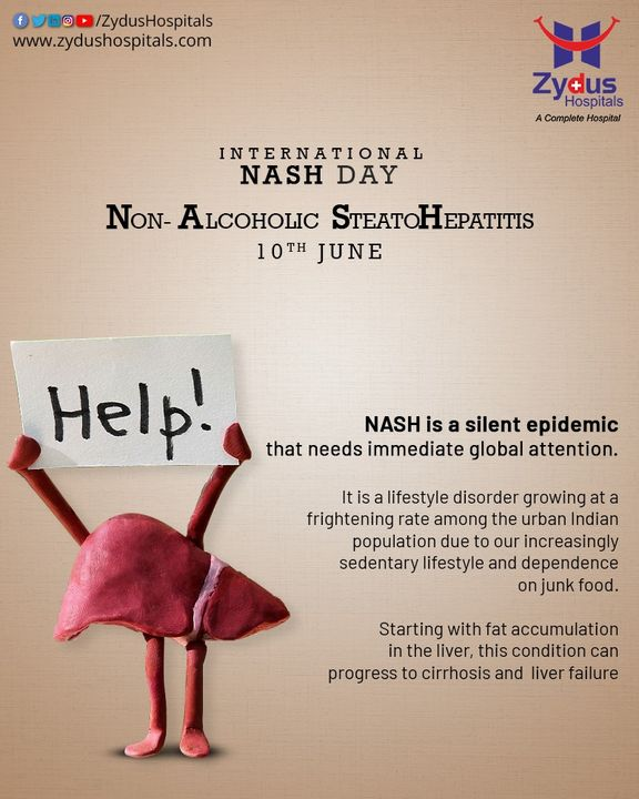 NASH (Non-Alcoholic Steatohepatitis) is a serious, progressive liver disease & public health challenge. It is a Silent Epidemic, which affects 3-5% of the global adult population (most people are between ages 40-60). NASH can lead to liver scarring (fibrosis), may progress to cirrhosis, liver cancer, liver failure and even death.   #NASH #NASHDay #WorldNASHDay2021 #InternationalNASHDay #LiverDisease #Steatohepatitis #Liver #Hospital #Health #ZydusHospitals #HealthCare #StayHealthy #ZydusCare #Ahmedabad #Gujarat #BestHospitalinAhmedabad