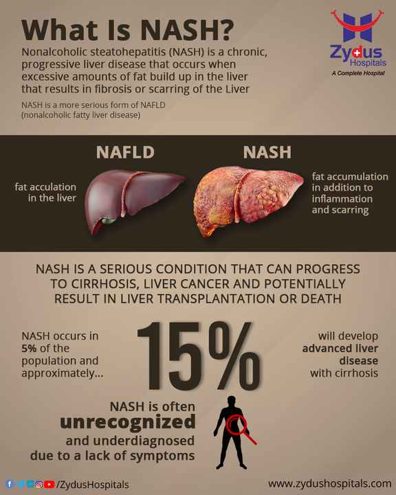 Having NASH basically means that you have inflammation and liver damage, along with fat in your liver. NASH is the form of Nonalcoholic Fatty Liver Disease (NAFLD), which is a silent disease with few or no symptoms. Certain health conditions including obesity, metabolic syndrome and type 2 diabetes are the risk factors. Weight loss & diet changes may help in reducing the risk along with early detection through regular checkups.  #NASH #LiverDisease #Steatohepatitis #Liver #Hospital #Health #ZydusHospitals #HealthCare #StayHealthy #ZydusCare #Ahmedabad #Gujarat #BestHospitalinAhmedabad