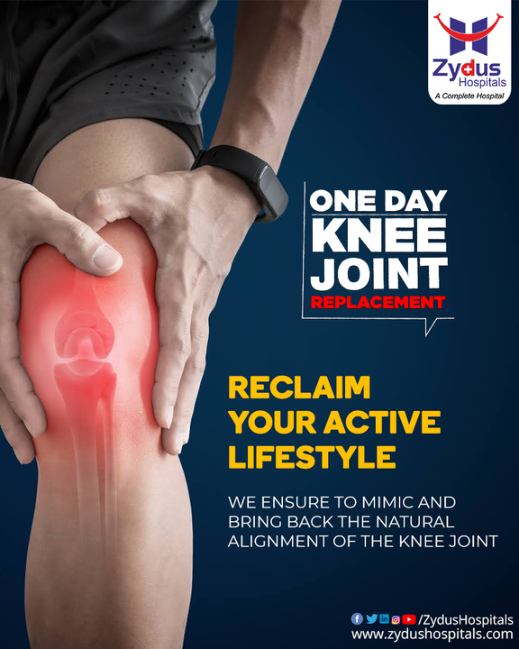 One Day Knee Joint Replacement at Zydus Hospitals plans at offering a perfectly aligned knee with well-balanced load sharing on both the compartments of the knee paves your way ahead for a pain-free walk. We assure to bring back your active lifestyle along with a greater range of motion through properly planned and researched treatment surgery.   Get your knee pain evaluated if you are experiencing pain, stiffness, instability or loss of function in your knees affecting your daily life and activities.  #ZydusHospitals #LetsKeepWalking #WinOverKneePain #OneDayTKR #OneDayKneeReplacement #TKR #KneeRepalcement #JointReplacement #Orthopedic #Ortho #OrthopedicSurgeon #Surgery #KneePain #JointPain #Health #HealthCare #HealthyHeart #StayHealthy #ZydusCare #Ahmedabad #Gujarat #BestHospitalinAhmedabad
