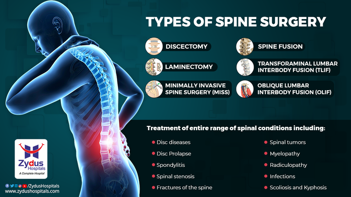 Spine injury is sometimes an unavoidable issue.  It demands to get resolved in no time and hence with the advancement of medical science an array of types of spine surgery have come up.  Stop struggling with your Spine issues any more; consult Spine experts and opt for the best opinion on which spine surgery is required to correct the issue.  #SpinalCord #SpinalCordInjury #Spine #Nerves #SafeSpineSurgery #SpineSurgery #SpineInjury #BackPain #Injury #ZydusHospitals #HealthCare #StayHealthy #ZydusCare #BestHospitalinAhmedabad #Ahmedabad #GoodHealth