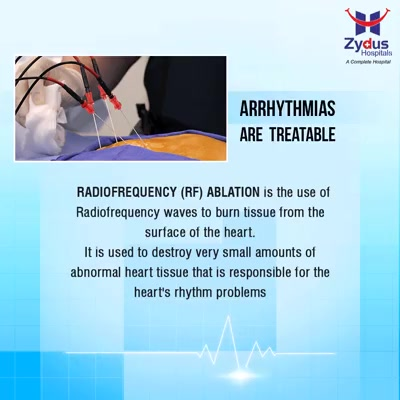 Radiofrequency (RF) ablation is the use of #Radiofrequency waves to burn tissue from the surface of the heart. It is used to destroy very small amounts of abnormal heart tissue that is responsible for the heart's rhythm problems.  #Heartbeats #HeartCare #HealthyYou #ZydusHospitals #ZydusCare #StayHealthy #Ahmedabad