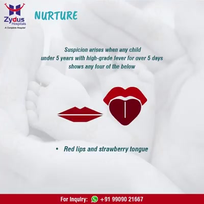 Fever in kids which is often missed - KAWASAKI DISEASE!  #KawasakiDiseaseIsTreatable #ZydusNurture #ZydusHospitals #StayHealthy #Ahmedabad #GoodHealth