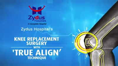 We believe in spreading smiles of Good Health!  #ZydusHospitals #StayHealthy #Ahmedabad #GoodHealth #PatientTestimonials #Testimonials #Truealignkneereplacement #KneeReplacement #TrueAlignTechnique