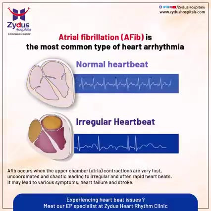 There are many people who have been suffering with the consequences of atrial fibrillation without having much knowledge and information about the same. Atrial fibrillation (AFib) is an irregular and rapid heart beat that occurs when the two upper chambers of heart experience chaotic electrical signals. It is one of the most common type of heart arrhythmia.  Right diagnosis and treatment are essential because a little carelessness can be very fatal.  #ZydusHospitals #Atrialfibrillation #HeartBeat #HealthCare #StayHealthy #ZydusCare #Ahmedabad #Gujarat #BestHospitalinAhmedabad #SmileofGoodHealth #Heartcare #Cardiology #EPStudy #Electrophysiology #ElectrophysiologyStudy