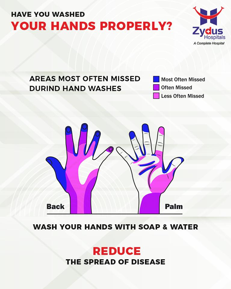 Washing hands efficiently is an integral part of personal hygiene. Have you washed your hands properly?  #StayHealthy #ZydusCare #ZydusHospitals #Ahmedabad #Gujarat https://t.co/WQdUJygBnj