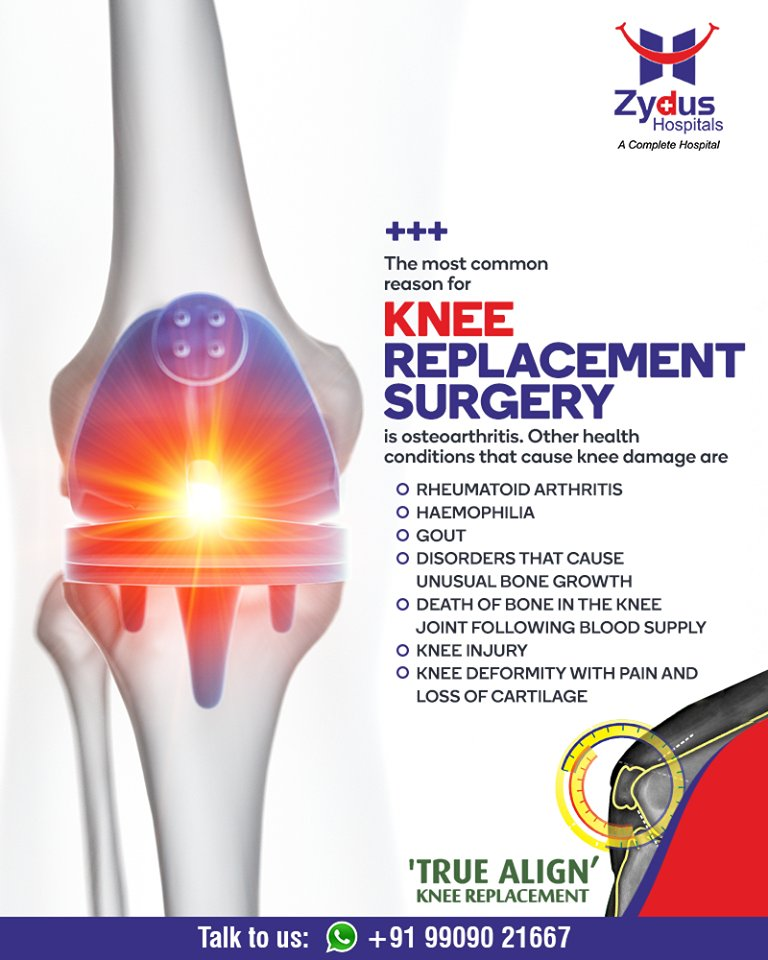 The most common reason for knee replacement surgery.  #kneereplacementsurgery #kneesurgery #kneereplacement #jointreplacement #truealignkneesurgery #StayHealthy #ZydusCare #ZydusHospitals #Ahmedabad #Gujarat https://t.co/SMSJTThf9i