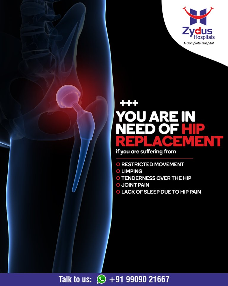 Hip replacement relieves your pain and helps you get back to enjoying normal, everyday activities.  #Hipreplacement #JointPain #jointreplacement #truealigntechnique #HipJointReplacement #StayHealthy #ZydusCare #ZydusHospitals #Ahmedabad #Gujarat https://t.co/MXWNu9z07n